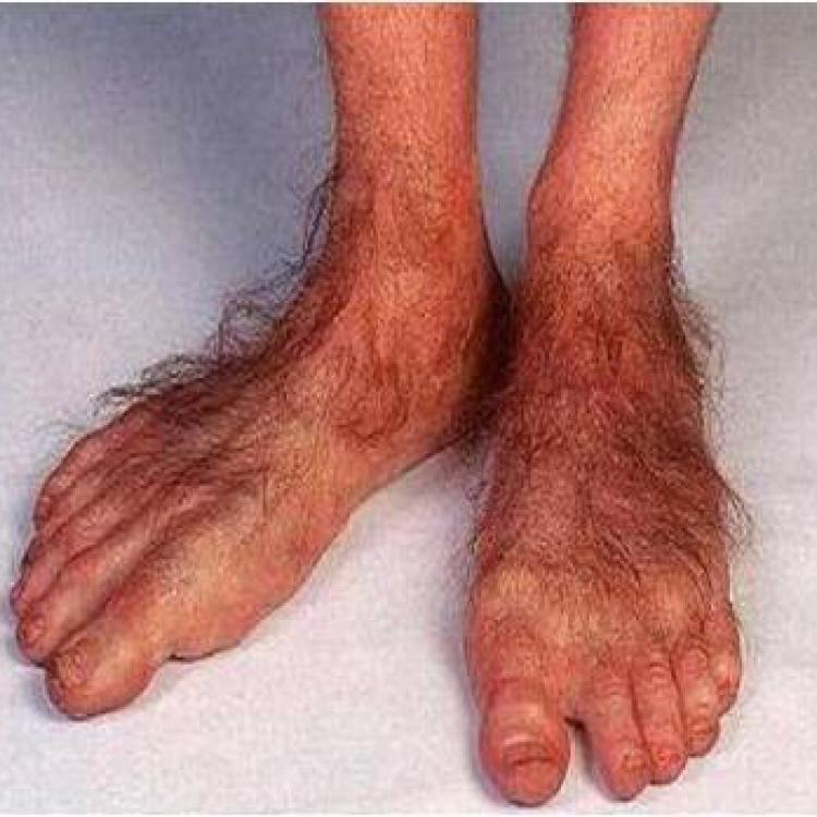 onlayn-noga-vlagalishe